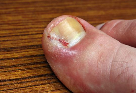 Ingrowing toenail