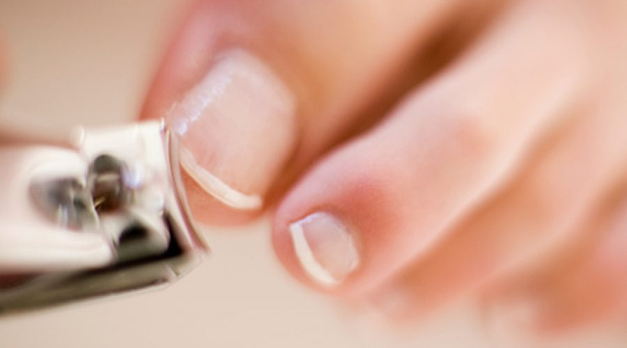 Caring for your toe nails