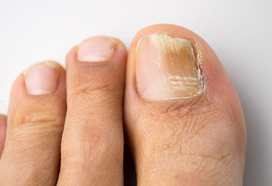 Fungal and discoloured toenails