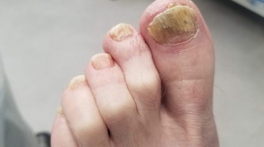 How To Treat Fungal Toe Nails